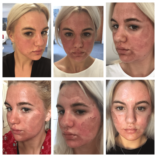 Ellie's Perfect Peel Diary - Illuminate Skin Clinics