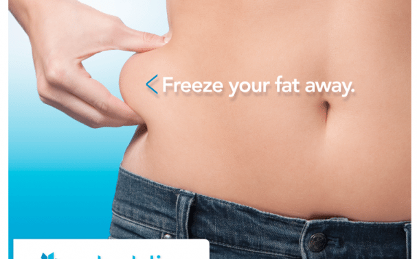 CoolSculpting in and around Maidstone