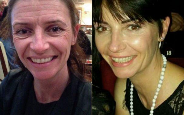 Gail – Facial Rejuvenation