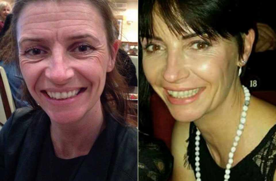 Gail – Facial Rejuvenation