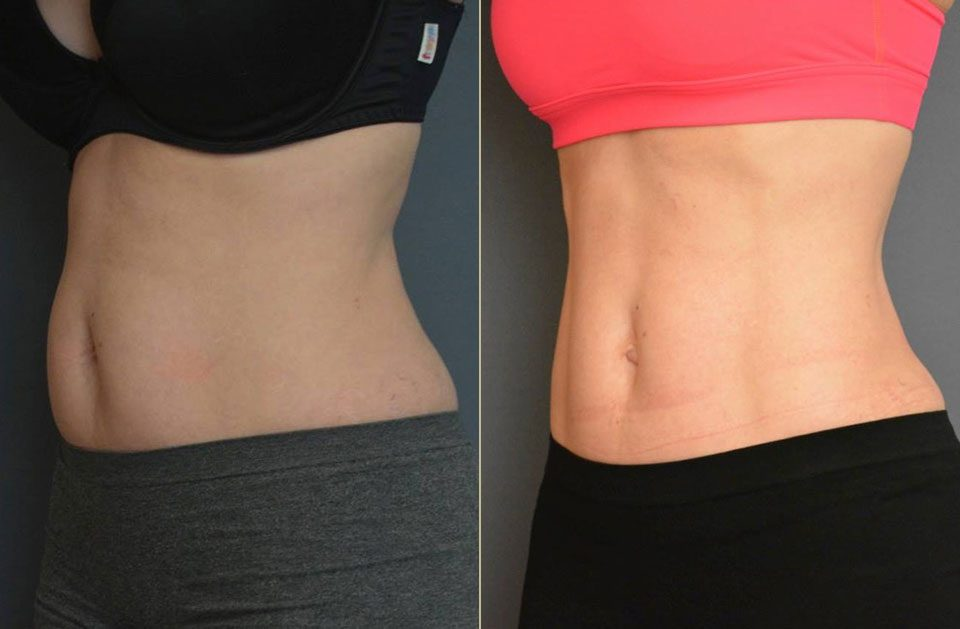 Lisa – CoolSculpting