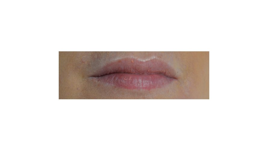 best lip filler treatment