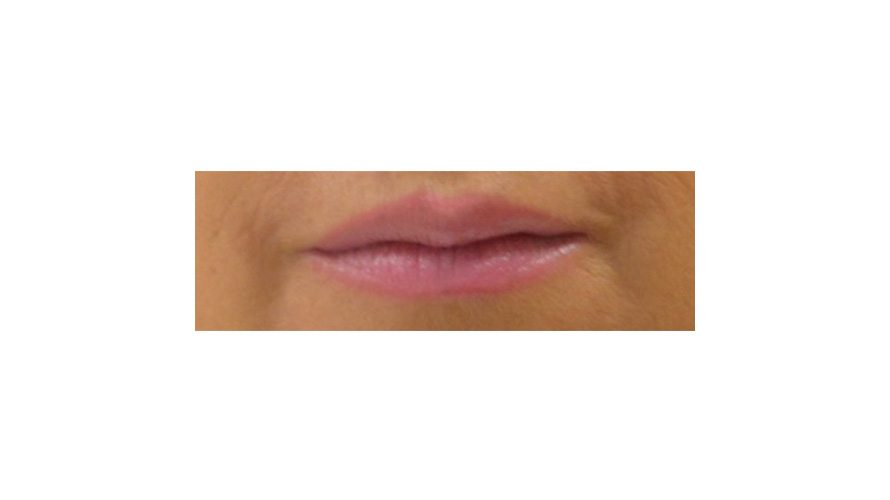 lip filler treatment kent