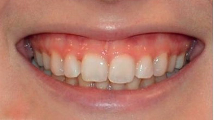 non surgical gummy smile correction