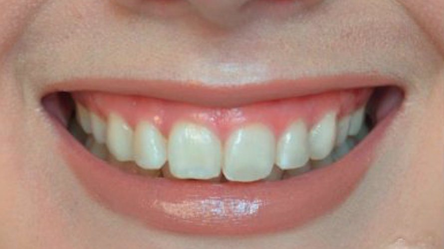 gummy smile correction botox
