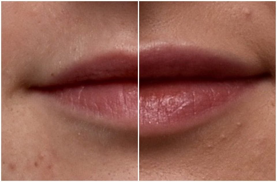 Amy's Story – Lip Fillers