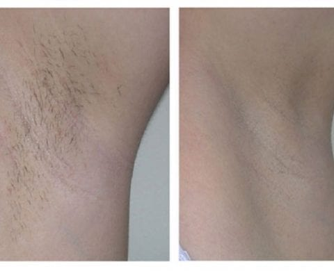 SHR: Super Hair Removal Technology
