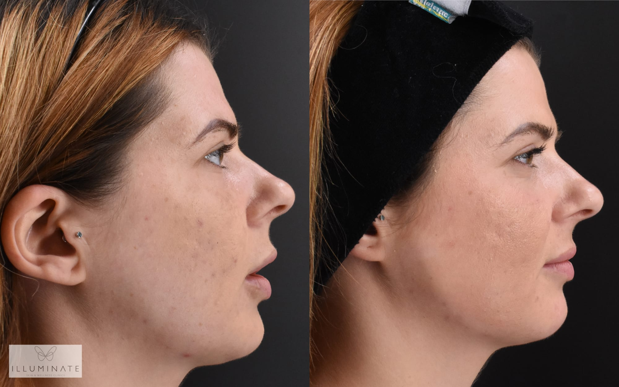 """How Dr Sophie transformed my skin and self-confidence"", by Illuminate team member Emma Nye."