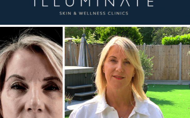 PATIENT STORY: Michaela Miles' Visit to Illuminate
