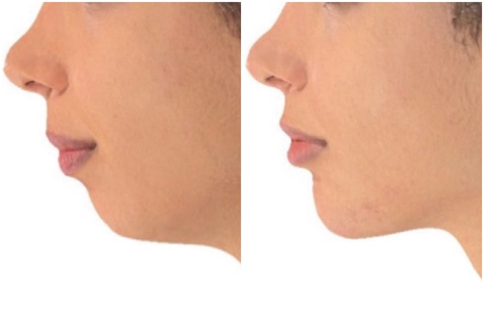 Why Juvederm Volux Is The Best Product For Jawline Contouring (2019)