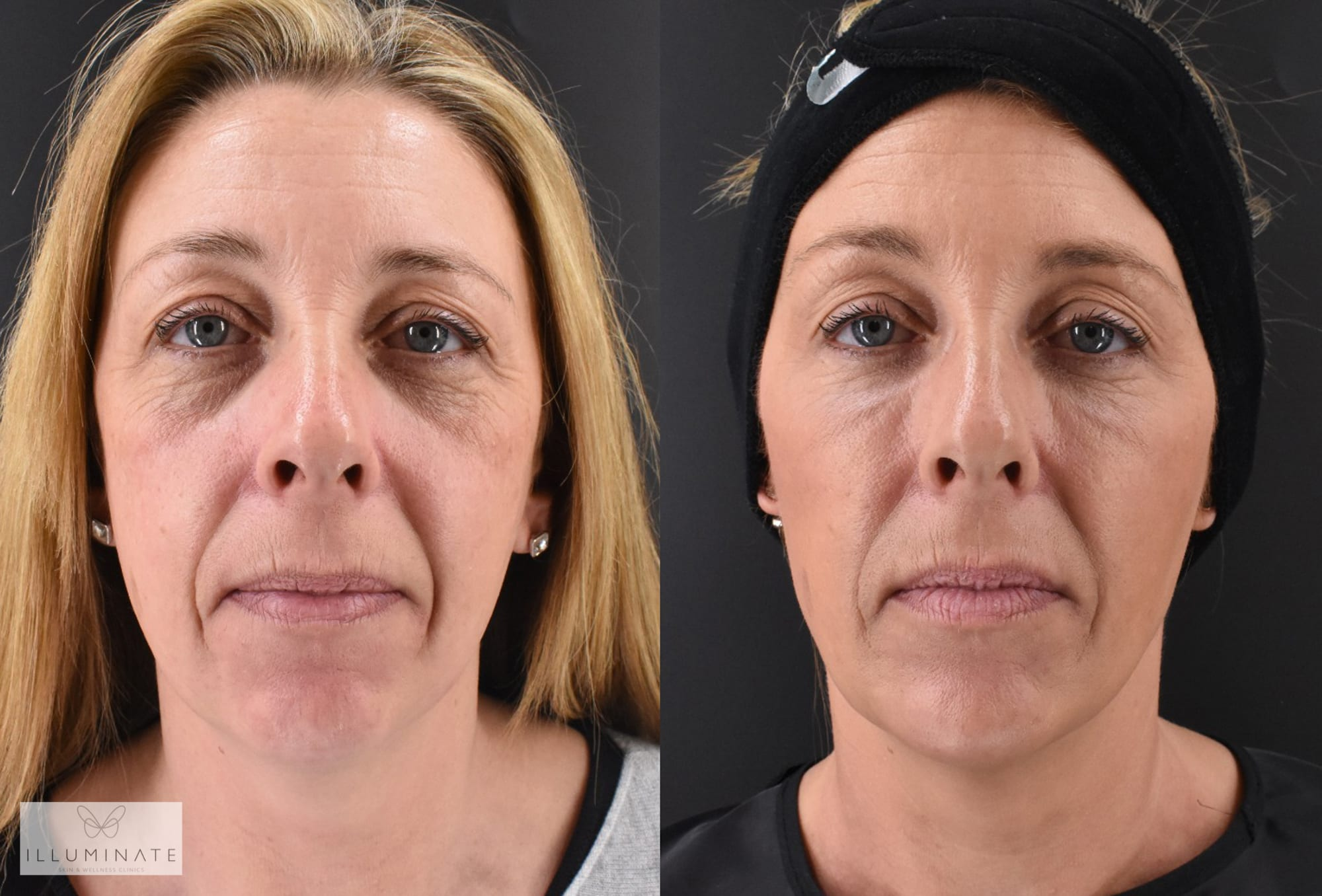 FAYE'S STORY: Illuminate patient shares her experiences of our new Shape & Sculpt treatment package