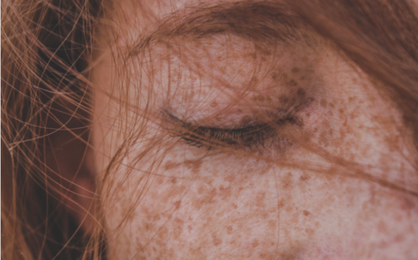 What causes Pigmentation and how to manage it effectively