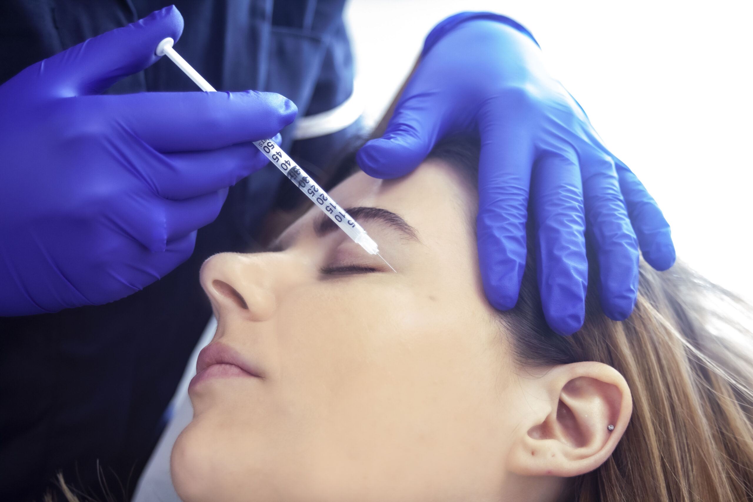 What is Profhilo & how does it differ from Fillers?
