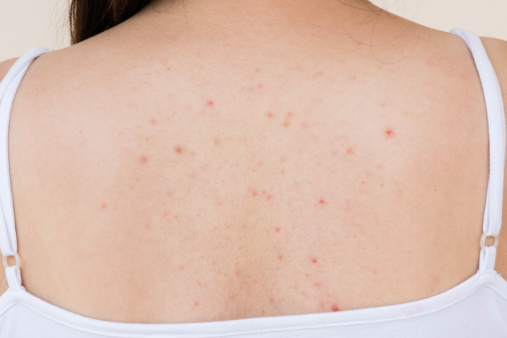 7 ways to combat back acne