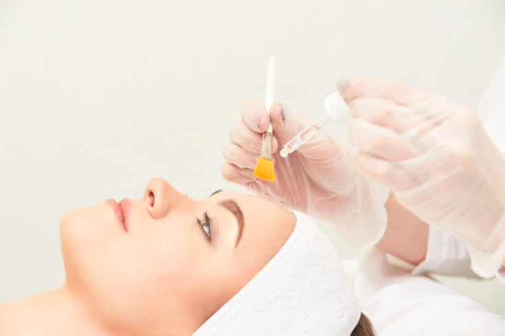 Why you don't need into hiding after a chemical peel – and other chemical peel myths