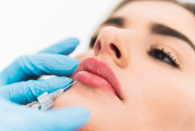 How to make your lip filler results last longer