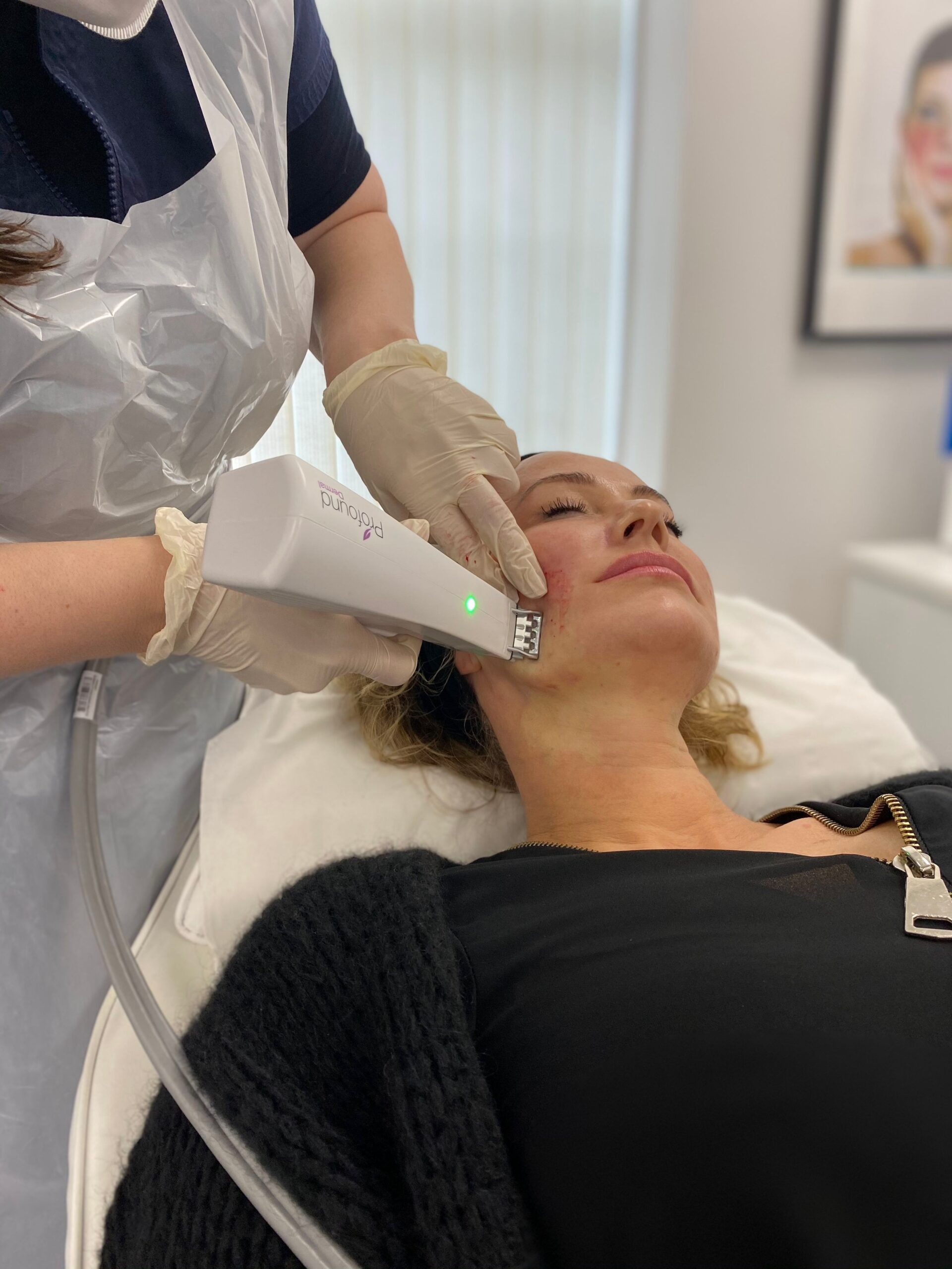 Non-surgical Skin Tightening vs. Fillers – Which is right for you?