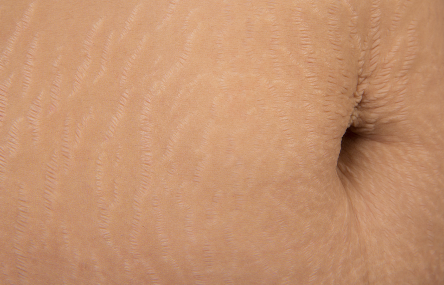 Can you ever actually get rid of stretch marks?