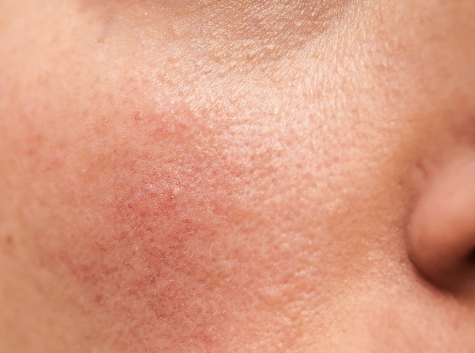 How To Manage and Treat Rosacea effectively
