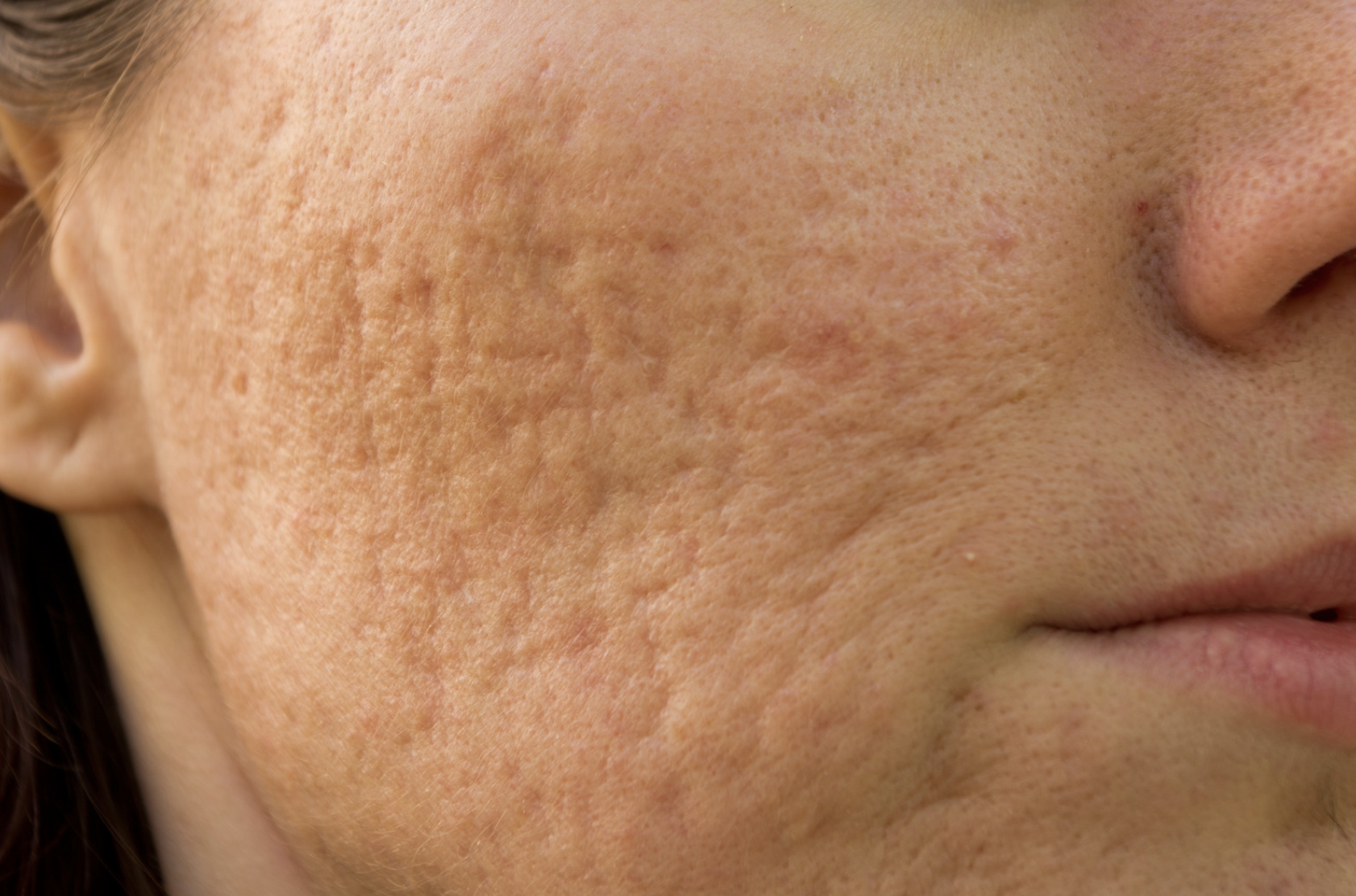 Will Acne Scars Fade on Their Own?