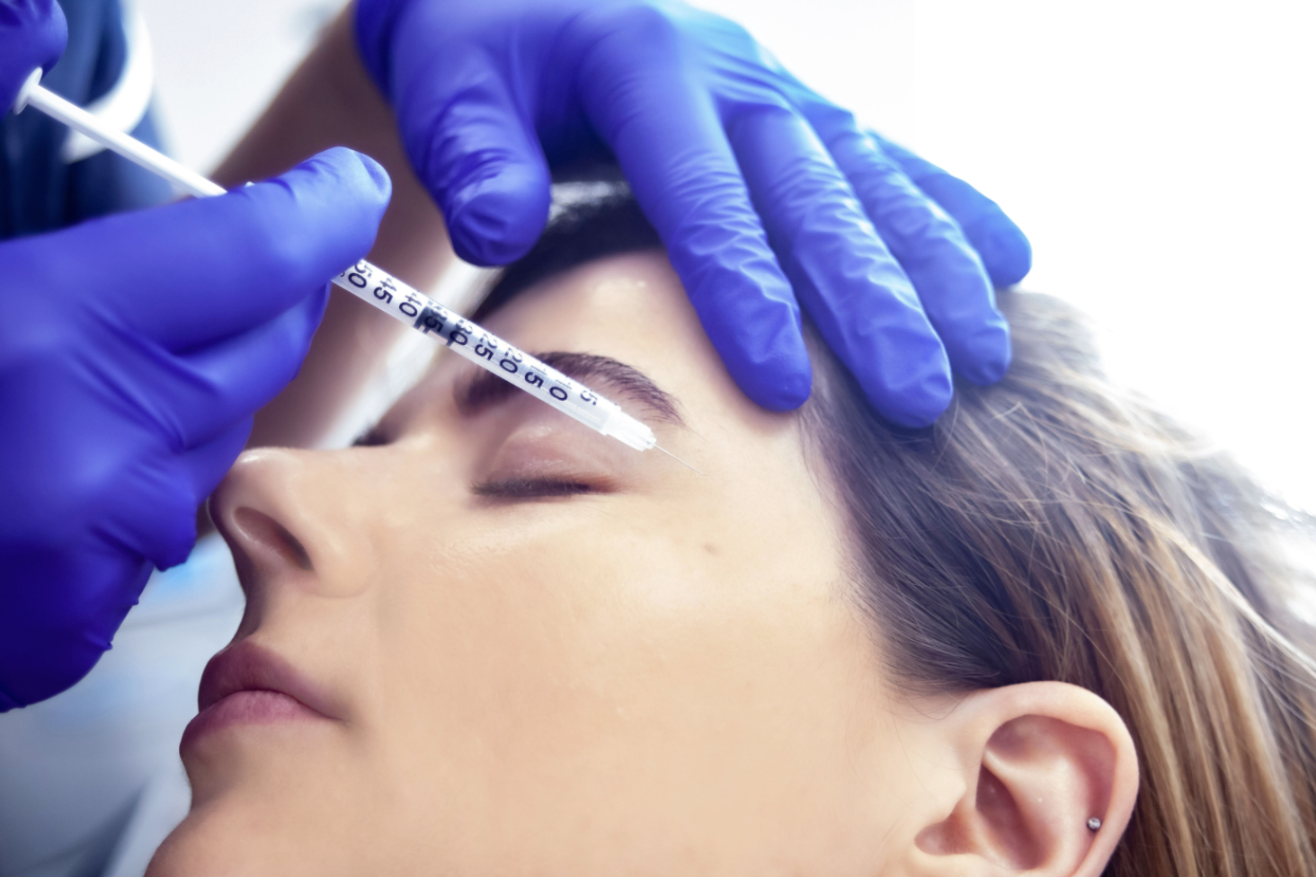 What Is the Best Age to Start Botox?