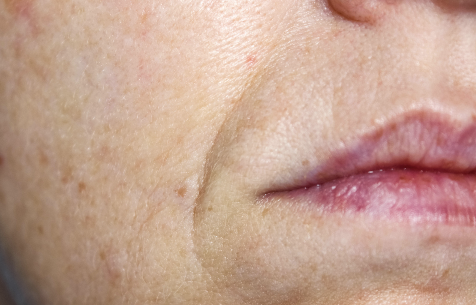 How To Get Rid of Nose-to-Mouth Nasolabial Lines