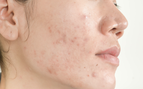 When Should You Seek the Help of a Professional for Your Acne?