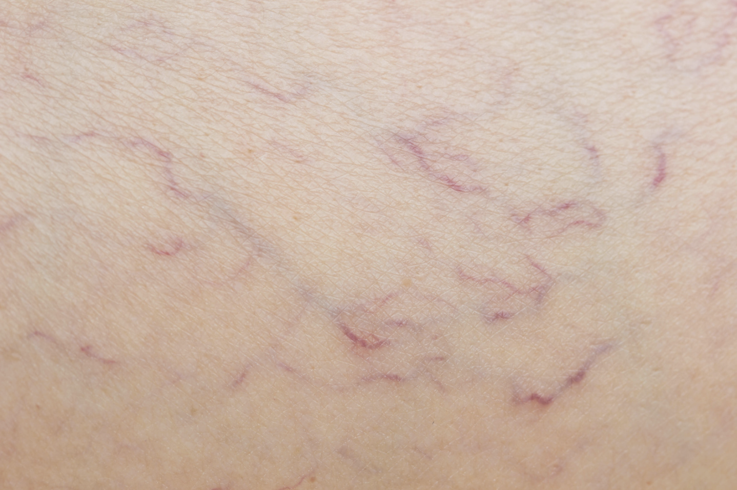 What Causes Spider Veins and How Can They Be Removed?