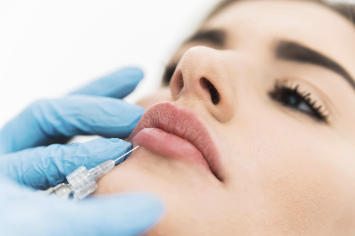 Lips fillers: How long do they last? How much do they cost? This is everything you need to know