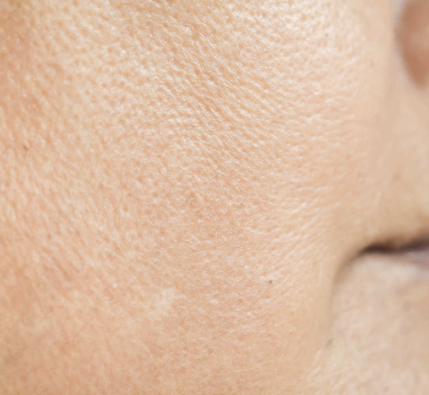 How to minimise pores: The products and treatments to look for