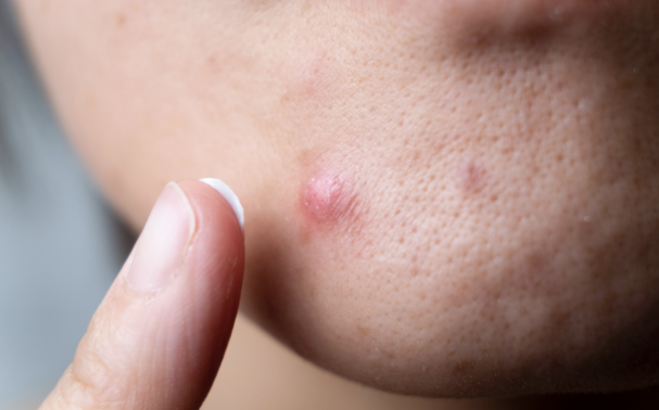 5 things to try before going to your GP about your acne